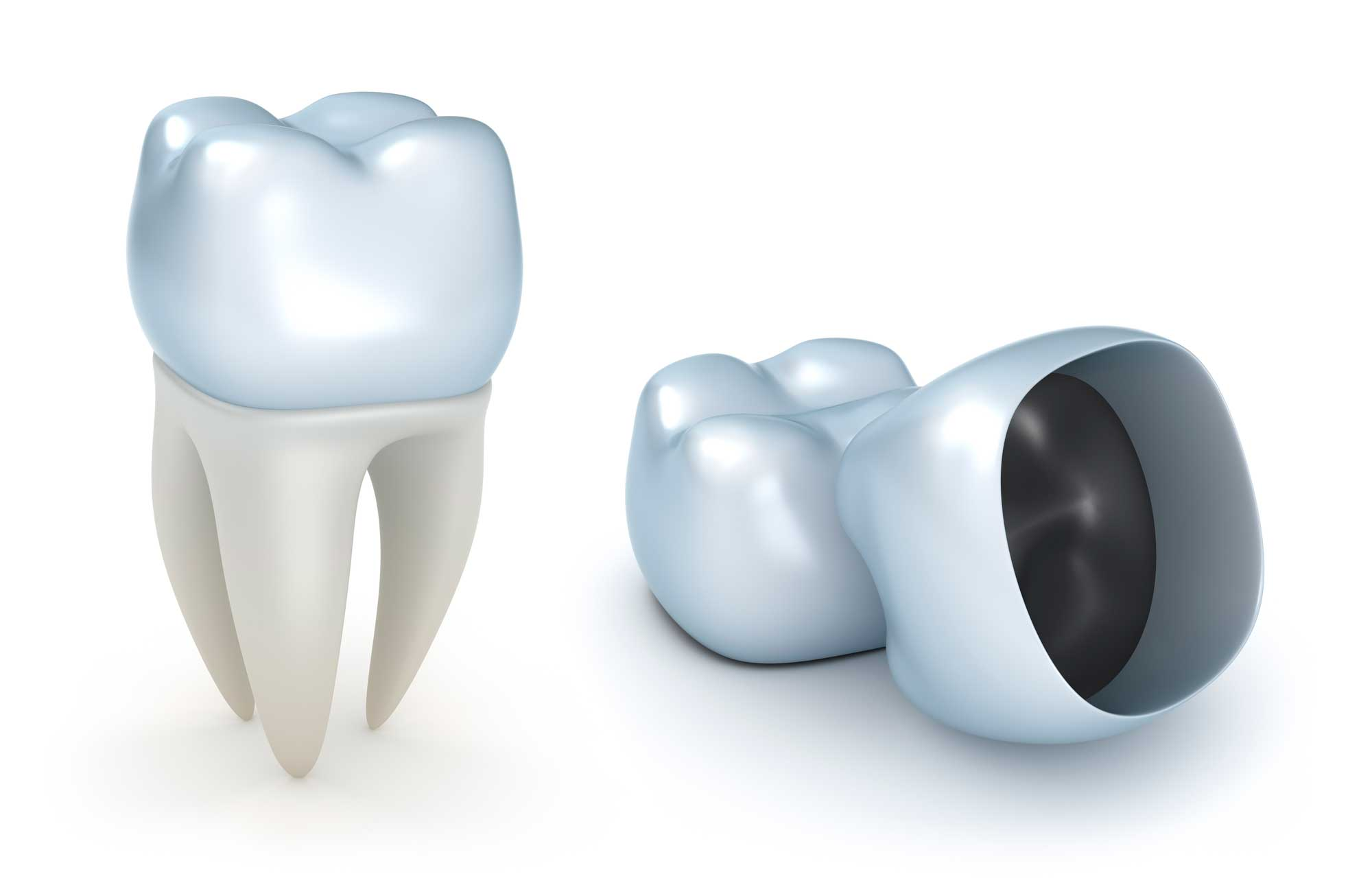 What are dental crowns and why should I get one?